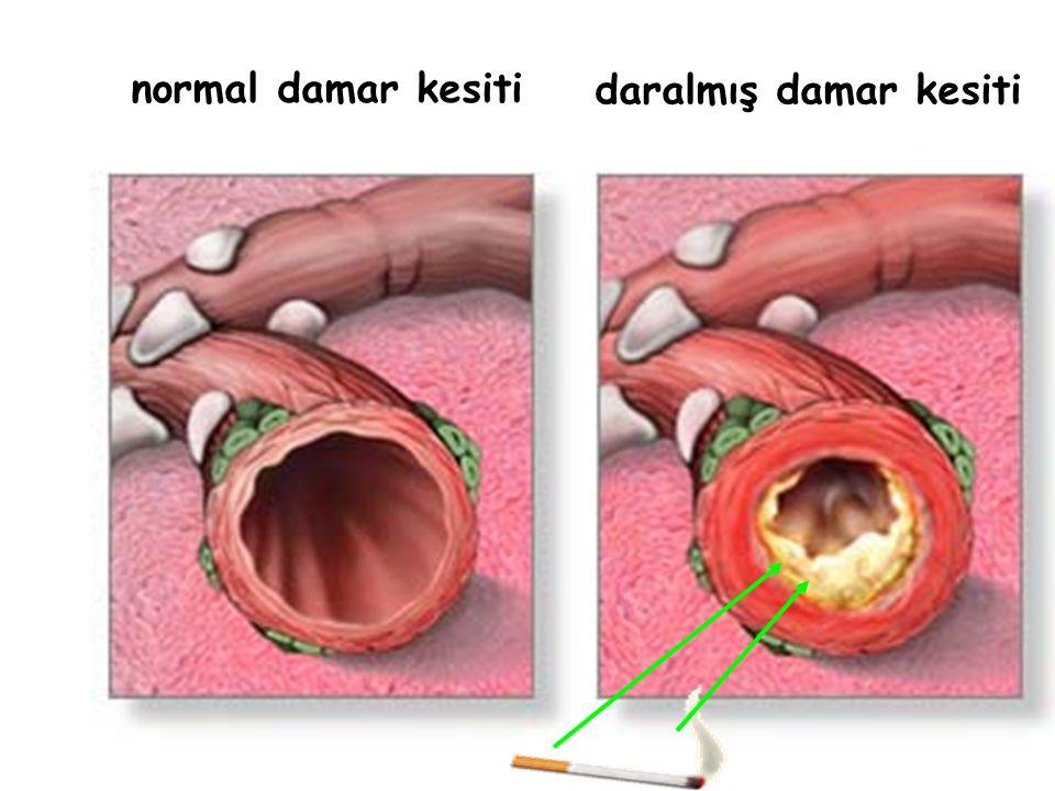 Damar tıkanıklıklarına bağlı olarak gelişen hastalıklar; * Hipertansiyon * Kalp krizi * Felç * Vücudun uç noktalarından yukarı doğru gelişen gangrenle