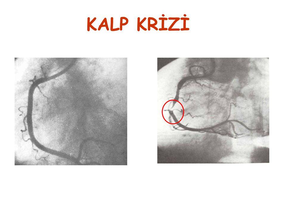 normal damar kesiti daralmış damar kesiti