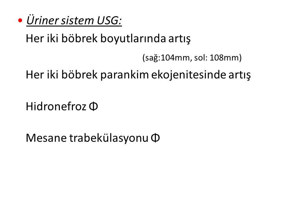 Üriner sistem USG: Her iki böbrek boyutlarında artış (sağ:104mm, sol: 108mm) Her iki böbrek parankim ekojenitesinde artış Hidronefroz Φ Mesane trabekü