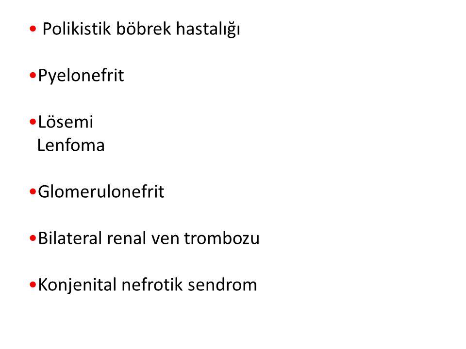 Polikistik böbrek hastalığı Pyelonefrit Lösemi Lenfoma Glomerulonefrit Bilateral renal ven trombozu Konjenital nefrotik sendrom