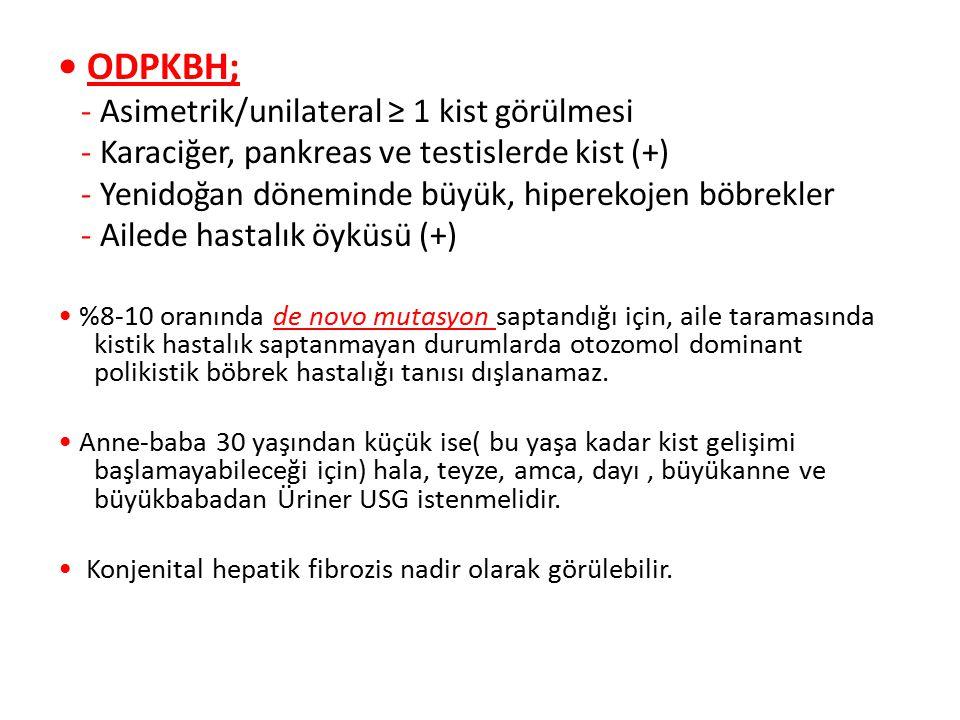 ODPKBH; - Asimetrik/unilateral ≥ 1 kist görülmesi - Karaciğer, pankreas ve testislerde kist (+) - Yenidoğan döneminde büyük, hiperekojen böbrekler - A