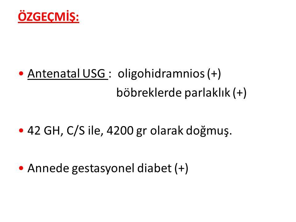 ÖZGEÇMİŞ: Antenatal USG : oligohidramnios (+) böbreklerde parlaklık (+) 42 GH, C/S ile, 4200 gr olarak doğmuş. Annede gestasyonel diabet (+)