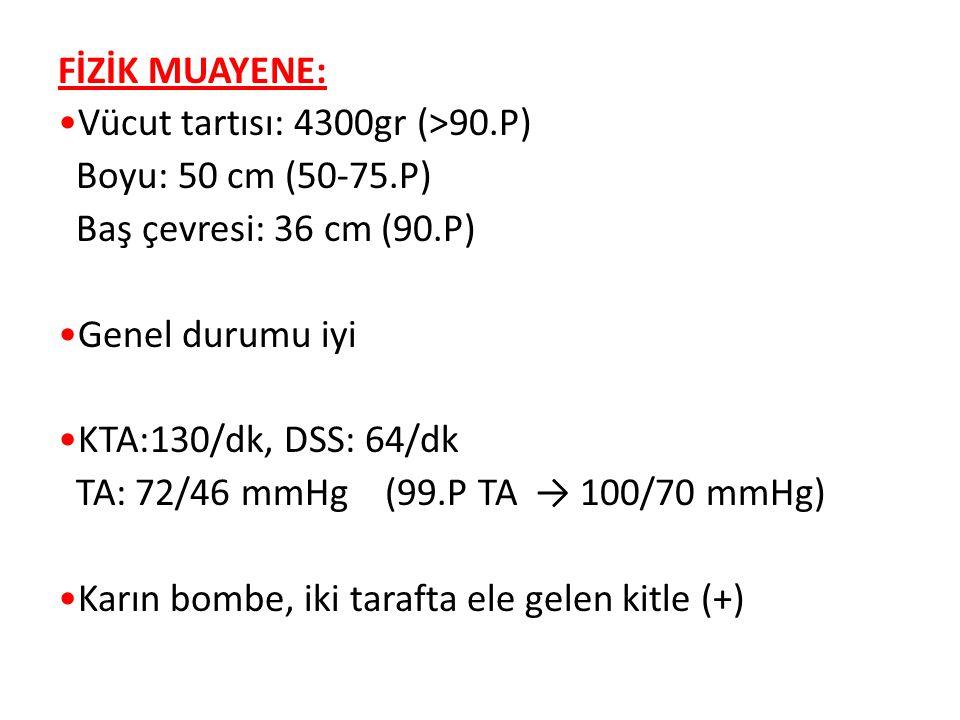 LABORATUAR: Lökosit: 18.400/mm3 Hb: 21 g/dl Hct:%59 Plt: 119.000/mm3 CRP (-) Kan Gazı: pH:7.36, pCO2: 45 mmHg, HCO3: 21 mmol/l Tam İdrar Tahlili: pH: 5.5, dansite: 1025, glukoz(-), eritrosit(-), protein(++), keton(-), bilirubin(-), ürobilinojen (N).
