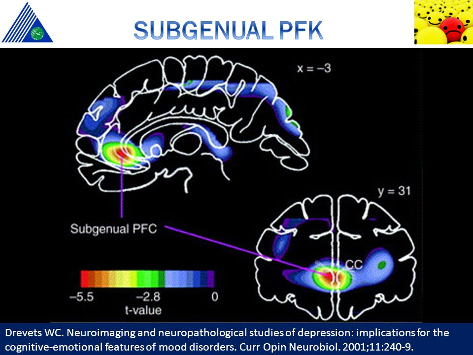 Drevets WC. Neuroimaging and neuropathological studies of depression: implications for the cognitive-emotional features of mood disorders. Curr Opin N