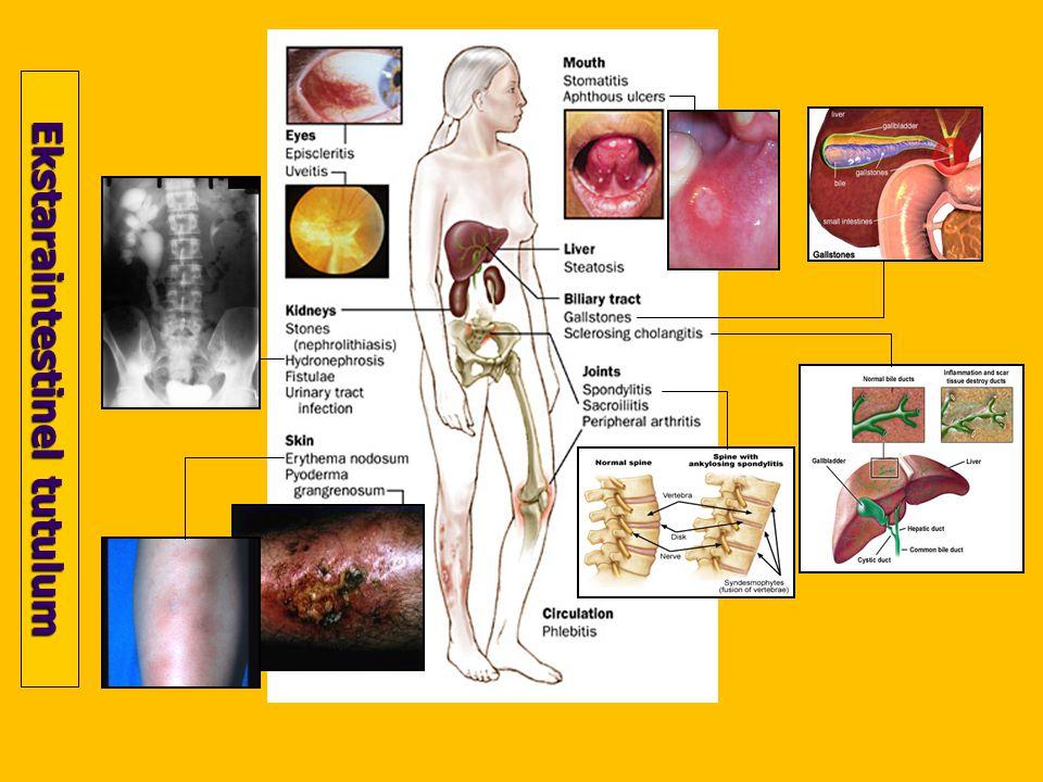 Tanı Uzun süreli, aralıklarla gelen karın ağrısı ve diyare varlığı Endoskopik ve radyolojik tetkiklerle tanı Rektoskopi ve kolonoskopi için karakteristik mukozal yapı Endoskopik biyopsilerin mikroskopisi kronik inflamasyon ve granülomlar