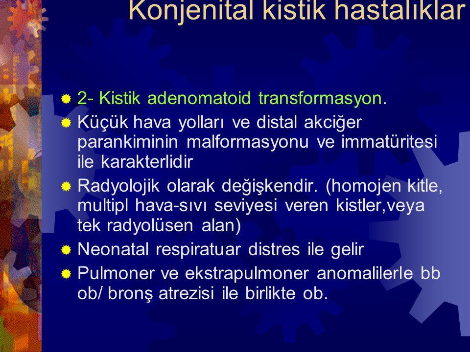  2- Kistik adenomatoid transformasyon.