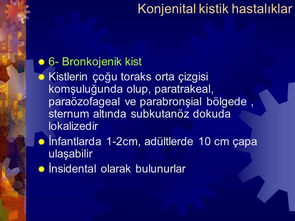  6- Bronkojenik kist  Kistlerin çoğu toraks orta çizgisi komşuluğunda olup, paratrakeal, paraözofageal ve parabronşial bölgede, sternum altında subkutanöz dokuda lokalizedir  İnfantlarda 1-2cm, adültlerde 10 cm çapa ulaşabilir  İnsidental olarak bulunurlar Konjenital kistik hastalıklar