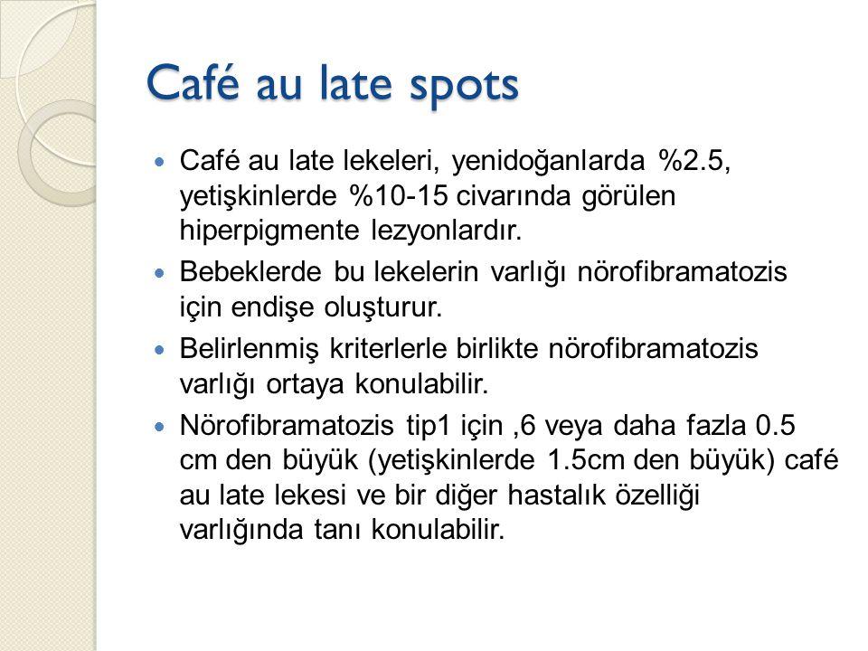 Café au late spots Café au late lekeleri, yenidoğanlarda %2.5, yetişkinlerde %10-15 civarında görülen hiperpigmente lezyonlardır. Bebeklerde bu lekele