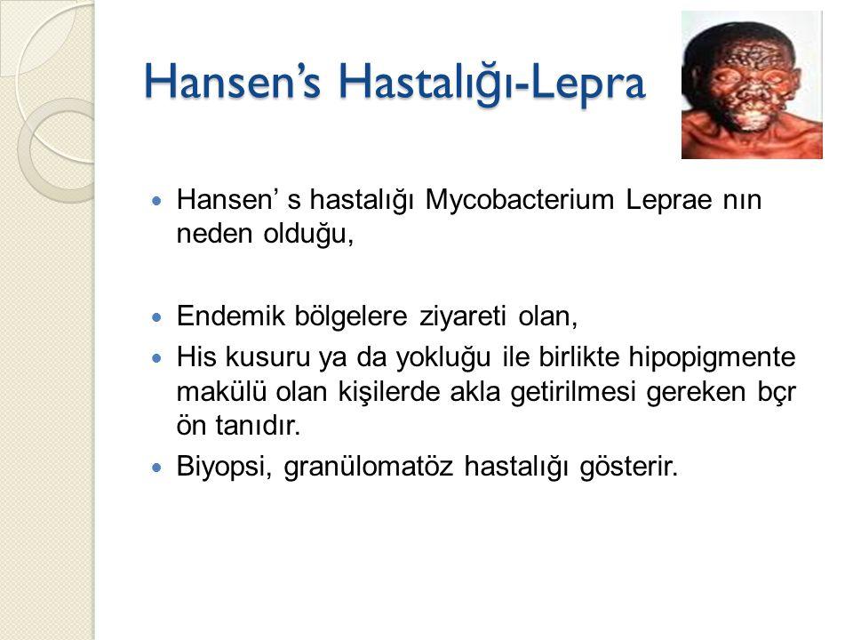 Hansen's Hastalı ğ ı-Lepra Hansen' s hastalığı Mycobacterium Leprae nın neden olduğu, Endemik bölgelere ziyareti olan, His kusuru ya da yokluğu ile bi