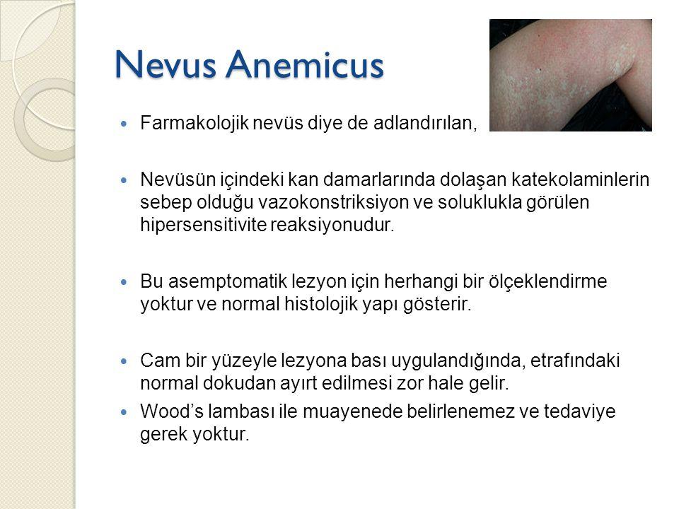Nevus Anemicus Farmakolojik nevüs diye de adlandırılan, Nevüsün içindeki kan damarlarında dolaşan katekolaminlerin sebep olduğu vazokonstriksiyon ve s