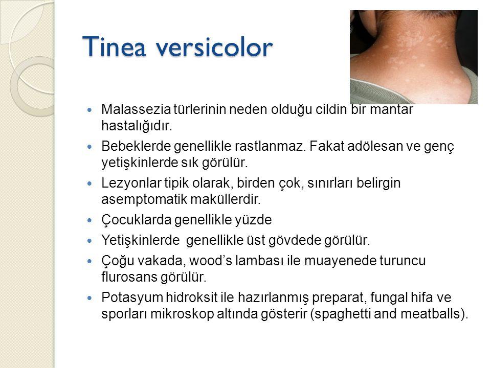 Tinea versicolor Malassezia türlerinin neden olduğu cildin bir mantar hastalığıdır. Bebeklerde genellikle rastlanmaz. Fakat adölesan ve genç yetişkinl