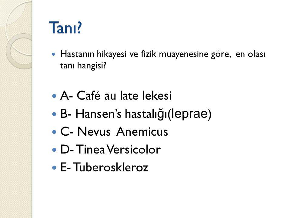 Tanı? Hastanın hikayesi ve fizik muayenesine göre, en olası tanı hangisi? A- Caf é au late lekesi B- Hansen's hastalı ğ ı( leprae ) C- Nevus Anemicus