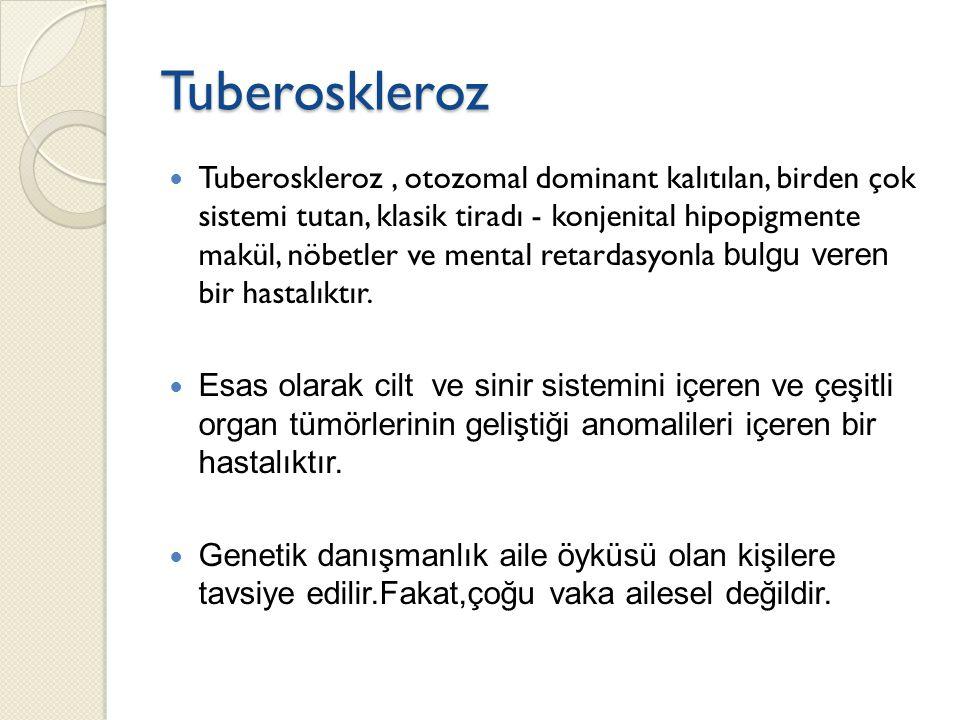 Tuberoskleroz Tuberoskleroz, otozomal dominant kalıtılan, birden çok sistemi tutan, klasik tiradı - konjenital hipopigmente makül, nöbetler ve mental