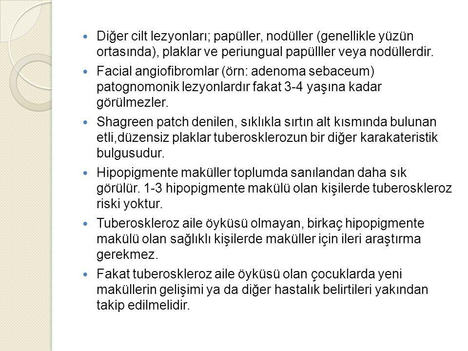 Diğer cilt lezyonları; papüller, nodüller (genellikle yüzün ortasında), plaklar ve periungual papülller veya nodüllerdir. Facial angiofibromlar (örn: