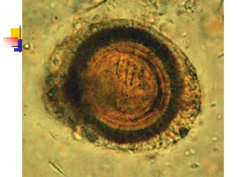CESTODLAR Vücutları Baş (skoleks) skolekste çekmenler ve çengeller bulunur Boyun Halkalardan oluşur