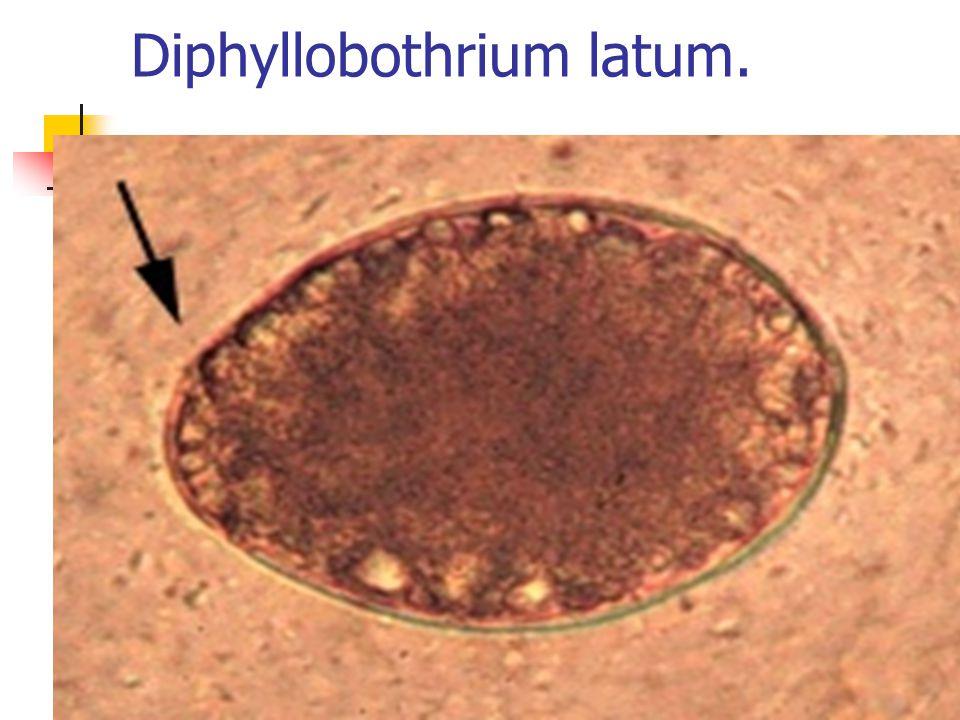 Diphyllobothrium latum.