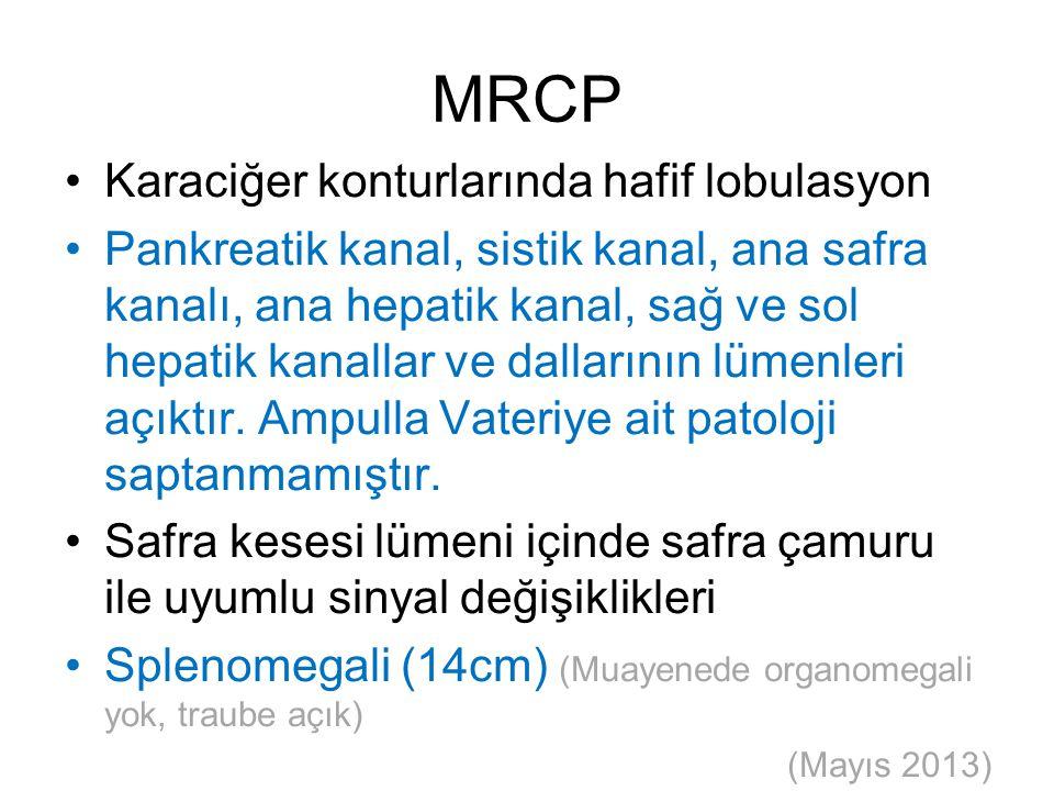 MRCP Karaciğer konturlarında hafif lobulasyon Pankreatik kanal, sistik kanal, ana safra kanalı, ana hepatik kanal, sağ ve sol hepatik kanallar ve dall
