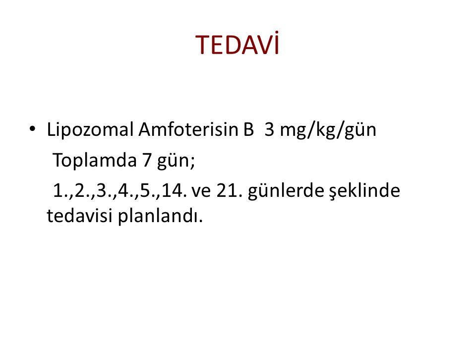 TEDAVİ Lipozomal Amfoterisin B 3 mg/kg/gün Toplamda 7 gün; 1.,2.,3.,4.,5.,14. ve 21. günlerde şeklinde tedavisi planlandı.