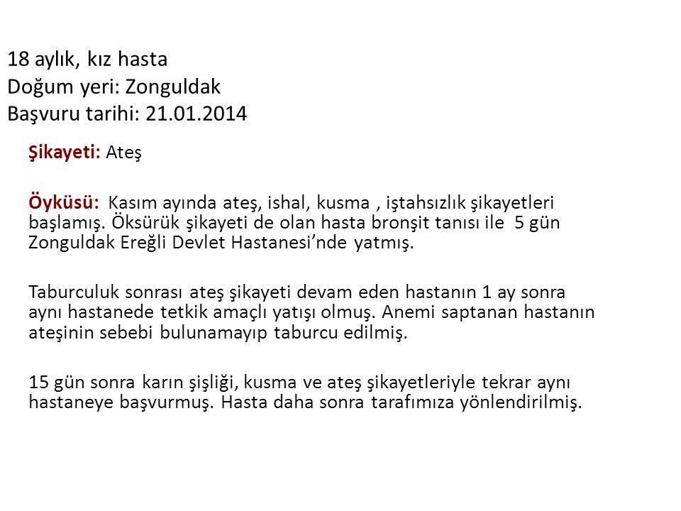 18 aylık, kız hasta Doğum yeri: Zonguldak Başvuru tarihi: 21.01.2014 Şikayeti: Ateş Öyküsü: Kasım ayında ateş, ishal, kusma, iştahsızlık şikayetleri b