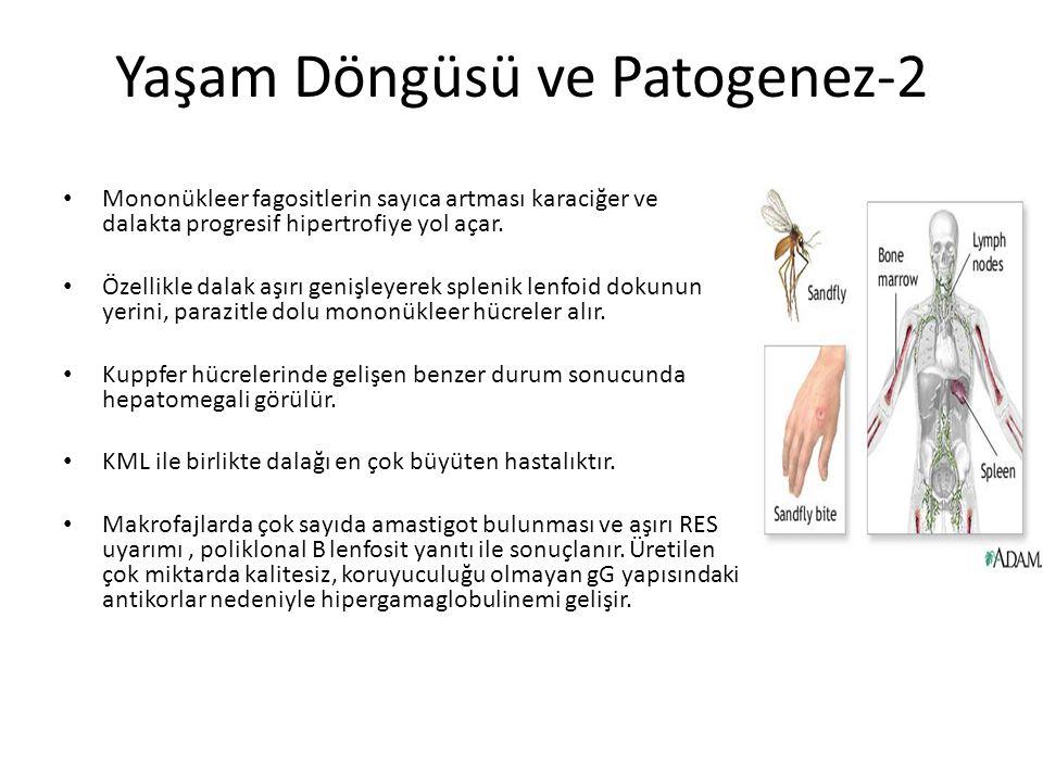 Yaşam Döngüsü ve Patogenez-2 Mononükleer fagositlerin sayıca artması karaciğer ve dalakta progresif hipertrofiye yol açar. Özellikle dalak aşırı geniş