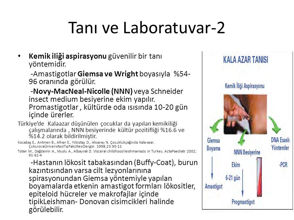 Tanı ve Laboratuvar-2 Kemik iliği aspirasyonu güvenilir bir tanı yöntemidir. -Amastigotlar Giemsa ve Wright boyasıyla %54- 96 oranında görülür. -Novy-