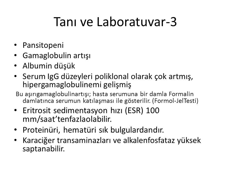 Tanı ve Laboratuvar-3 Pansitopeni Gamaglobulin artışı Albumin düşük Serum IgG düzeyleri poliklonal olarak çok artmış, hipergamaglobulinemi gelişmiş Bu