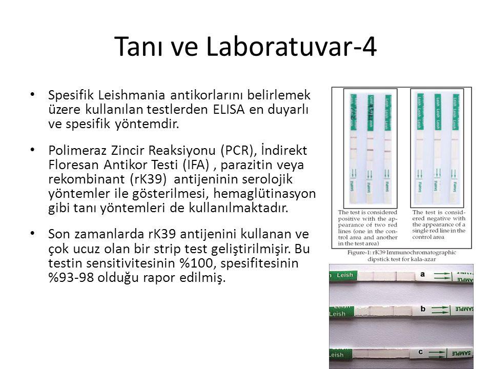 Tanı ve Laboratuvar-4 Spesifik Leishmania antikorlarını belirlemek üzere kullanılan testlerden ELISA en duyarlı ve spesifik yöntemdir. Polimeraz Zinci