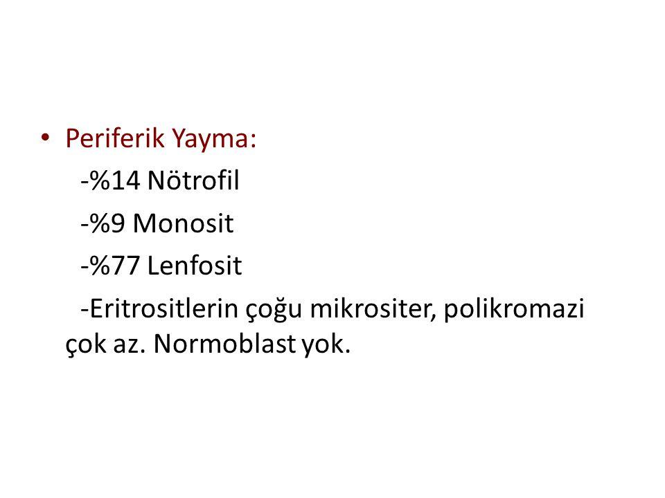 Periferik Yayma: -%14 Nötrofil -%9 Monosit -%77 Lenfosit -Eritrositlerin çoğu mikrositer, polikromazi çok az. Normoblast yok.