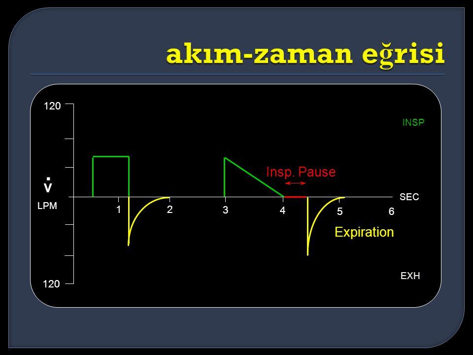 12 3 4 56 SEC 120 EXH INSP Insp. Pause Expiration V. LPM