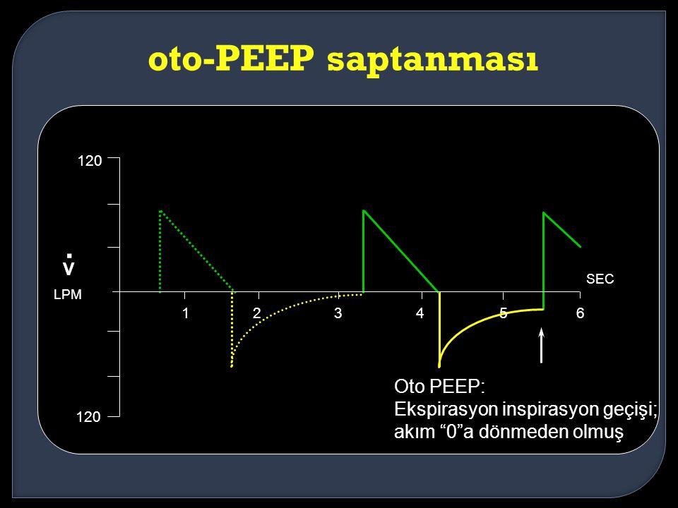 """oto-PEEP saptanması Oto PEEP: Ekspirasyon inspirasyon geçişi; akım """"0""""a dönmeden olmuş 123456 SEC 120 V. LPM"""