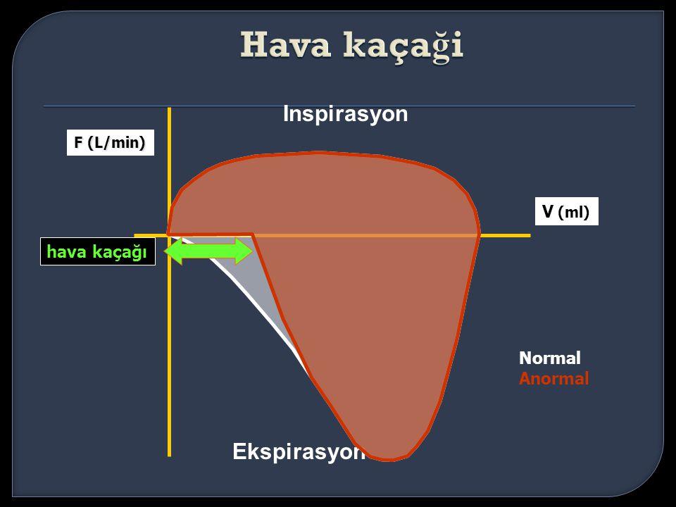 Inspirasyon Ekspirasyon V (ml) F (L/min) hava kaçağı Normal Anormal