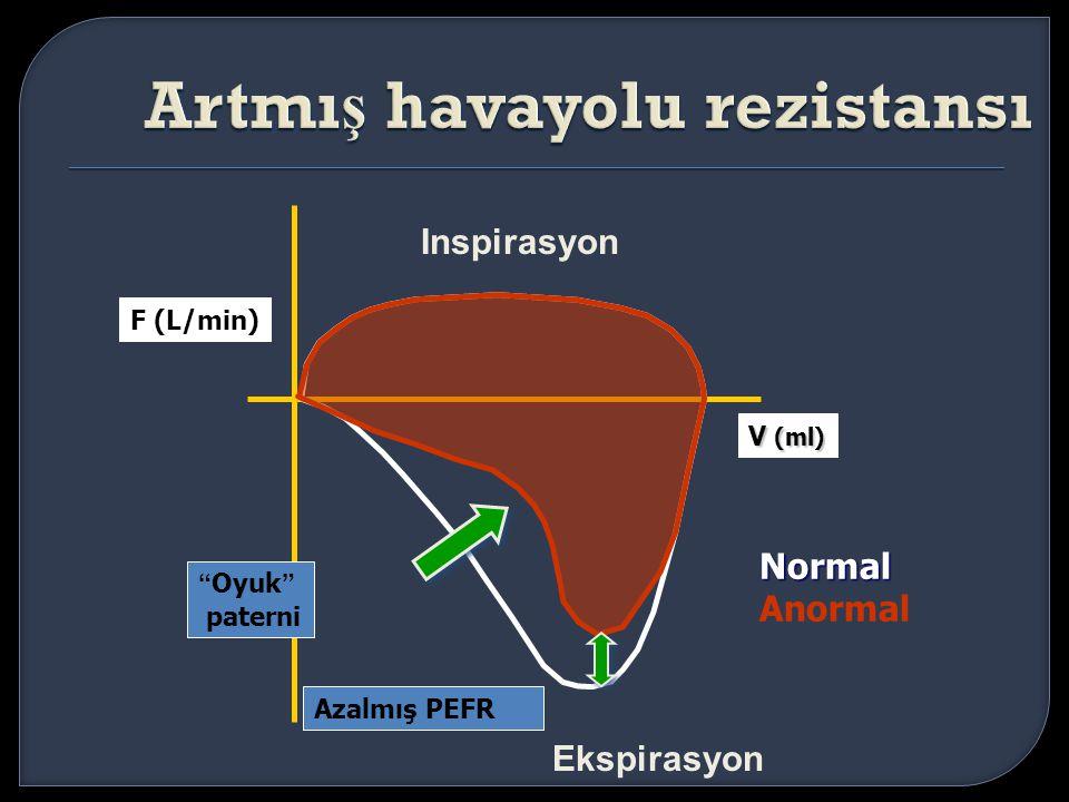 """Inspirasyon Ekspirasyon V (ml) F (L/min) Azalmış PEFR Normal Anormal """"Oyuk"""" paterni"""
