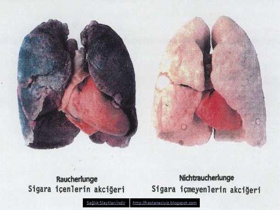 Sigara öldürür Sigara tiryakilerinin %10-15 kadarı akciğer kanserinden ölür.