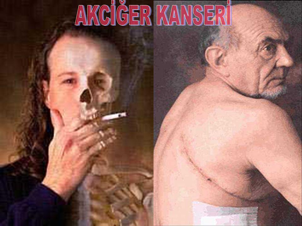 Sigara kalpten öldürür Kalp-damar hastalıklarına bağlı ölümlerin 1/3'ünün sebebi sigaradır.