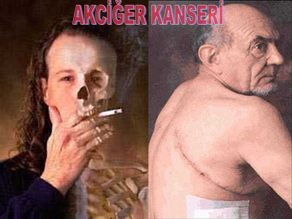  Karaciğer Kanseri - %80 inde etken sigara.