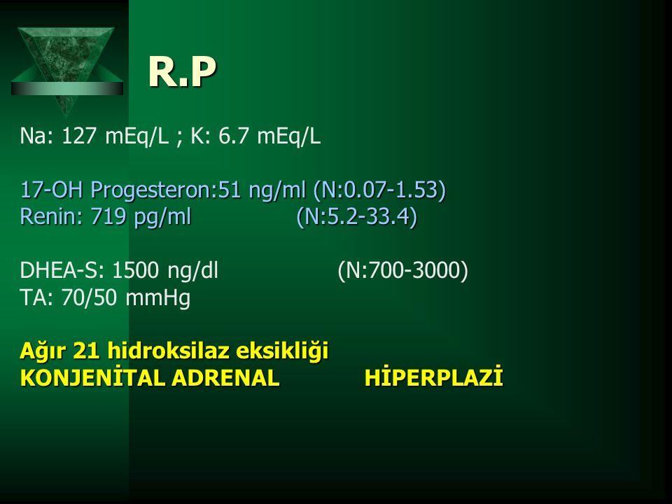 R.P Na: 127 mEq/L ; K: 6.7 mEq/L 17-OH Progesteron:51 ng/ml (N:0.07-1.53) Renin: 719 pg/ml (N:5.2-33.4) DHEA-S: 1500 ng/dl (N:700-3000) TA: 70/50 mmHg