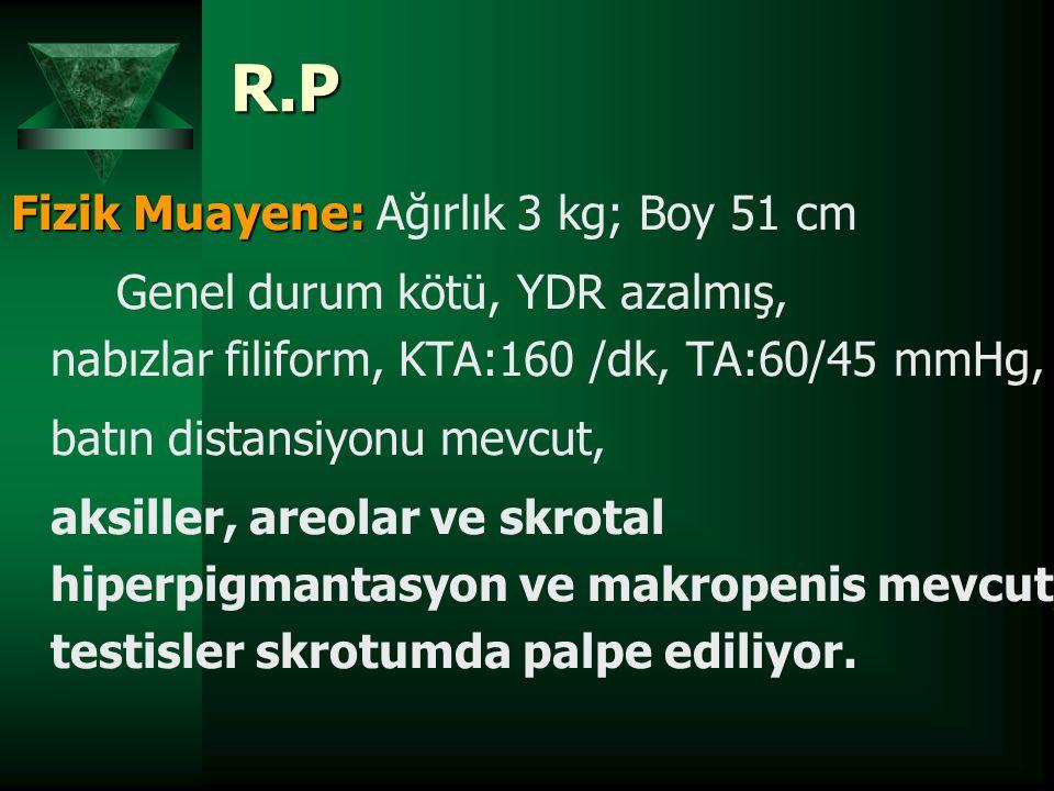 R.P Fizik Muayene: Fizik Muayene: Ağırlık 3 kg; Boy 51 cm Genel durum kötü, YDR azalmış, nabızlar filiform, KTA:160 /dk, TA:60/45 mmHg, batın distansi