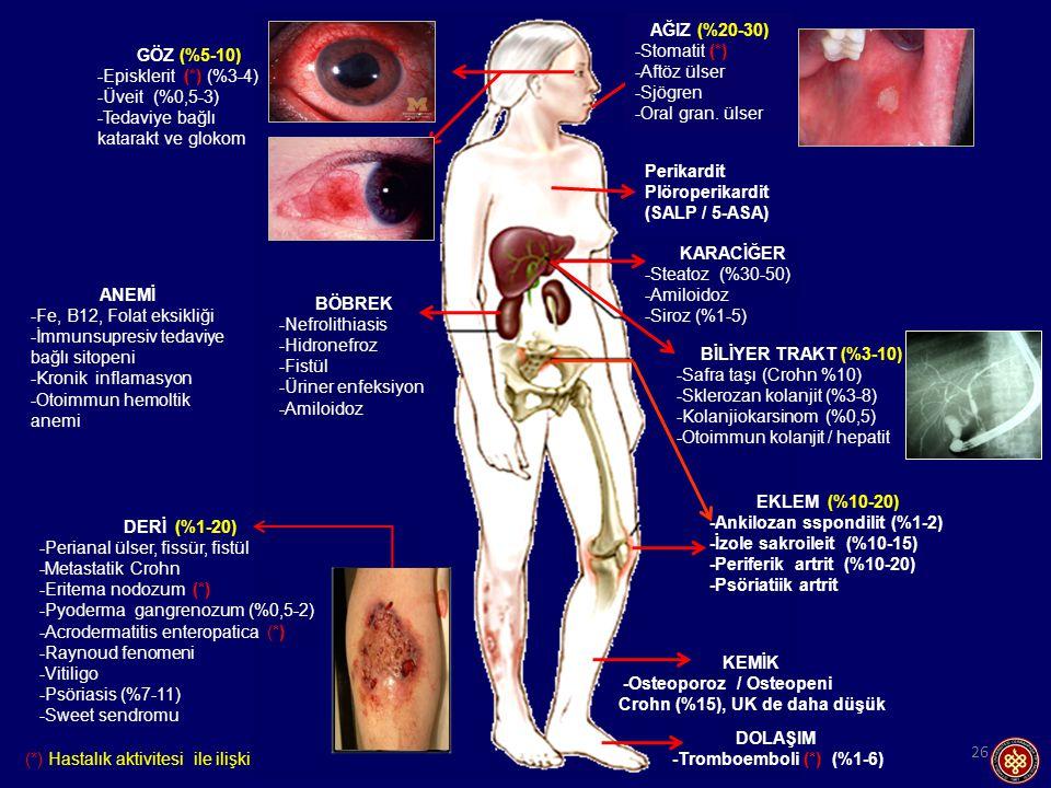 (*) Hastalık aktivitesi ile ilişkili 26 GÖZ (%5-10) -Episklerit (*) (%3-4) -Üveit (%0,5-3) -Tedaviye bağlı katarakt ve glokom BÖBREK -Nefrolithiasis -Hidronefroz -Fistül -Üriner enfeksiyon -Amiloidoz DERİ (%1-20) -Perianal ülser, fissür, fistül -Metastatik Crohn -Eritema nodozum (*) -Pyoderma gangrenozum (%0,5-2) -Acrodermatitis enteropatica (*) -Raynoud fenomeni -Vitiligo -Psöriasis (%7-11) -Sweet sendromu EKLEM (%10-20) -Ankilozan sspondilit (%1-2) -İzole sakroileit (%10-15) -Periferik artrit (%10-20) -Psöriatiik artrit DOLAŞIM -Tromboemboli (*) (%1-6) BİLİYER TRAKT (%3-10) -Safra taşı (Crohn %10) -Sklerozan kolanjit (%3-8) -Kolanjiokarsinom (%0,5) -Otoimmun kolanjit / hepatit KARACİĞER -Steatoz (%30-50) -Amiloidoz -Siroz (%1-5) KEMİK -Osteoporoz / Osteopeni Crohn (%15), UK de daha düşük ANEMİ -Fe, B12, Folat eksikliği -İmmunsupresiv tedaviye bağlı sitopeni -Kronik inflamasyon -Otoimmun hemoltik anemi Perikardit Plöroperikardit (SALP / 5-ASA) AĞIZ (%20-30) -Stomatit (*) -Aftöz ülser -Sjögren -Oral gran.