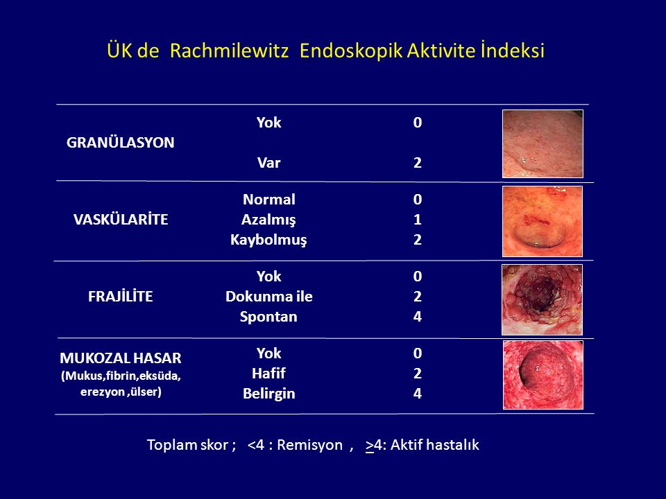 Masif HemorajiToksik megekolonPerforasyonStriktür -ÜK li hastaların ancak %10 kadarında görülür -Alt GİS kanamalarının %1 inden sorumludur.