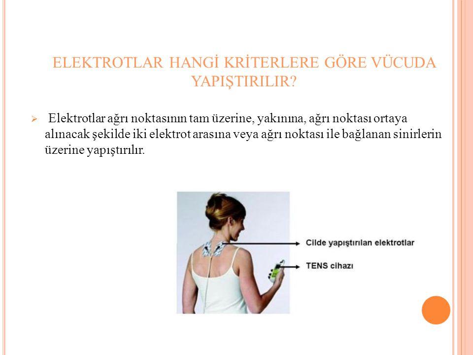 ELEKTROTLAR HANGİ KRİTERLERE GÖRE VÜCUDA YAPIŞTIRILIR?  Elektrotlar ağrı noktasının tam üzerine, yakınına, ağrı noktası ortaya alınacak şekilde iki e
