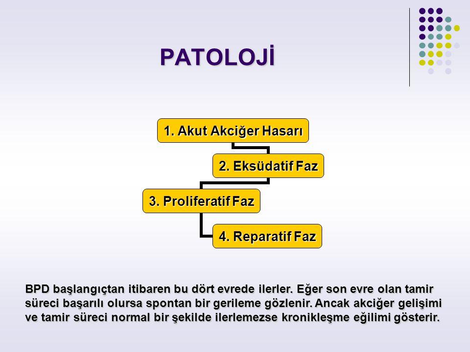 PATOLOJİ 1. Akut Akciğer Hasarı 2. Eksüdatif Faz 3. Proliferatif Faz 4. Reparatif Faz BPD başlangıçtan itibaren bu dört evrede ilerler. Eğer son evre