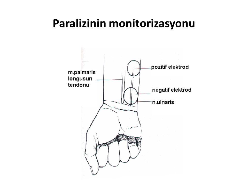 Paralizinin monitorizasyonu