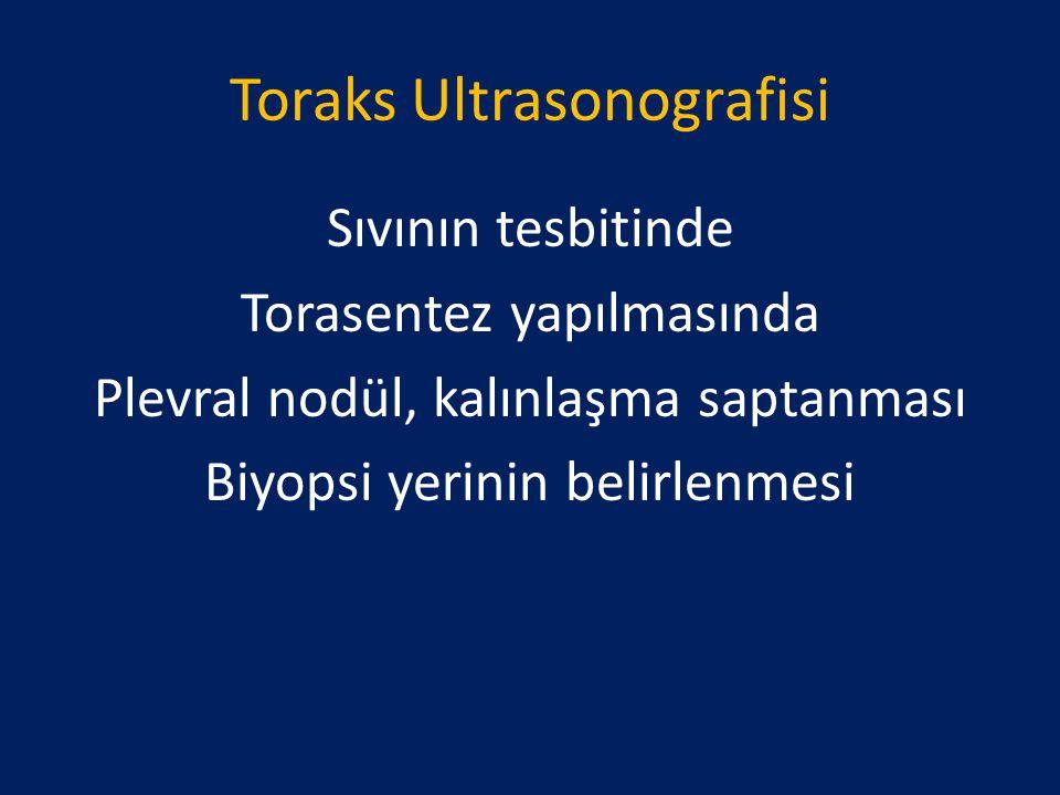 Toraks Ultrasonografisi Sıvının tesbitinde Torasentez yapılmasında Plevral nodül, kalınlaşma saptanması Biyopsi yerinin belirlenmesi