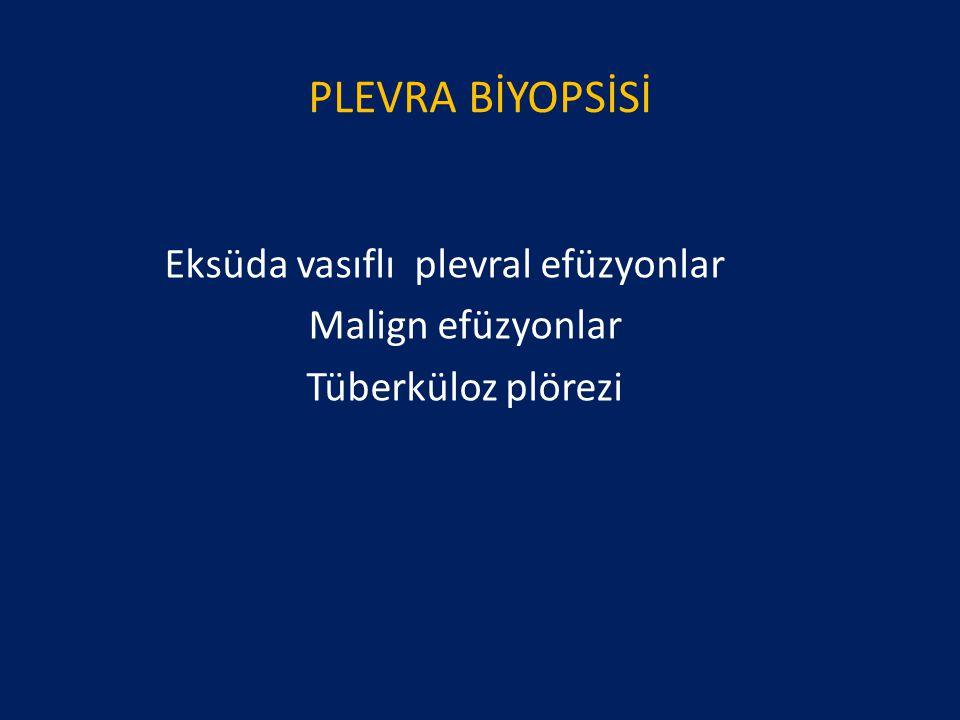 PLEVRA BİYOPSİSİ Eksüda vasıflı plevral efüzyonlar Malign efüzyonlar Tüberküloz plörezi