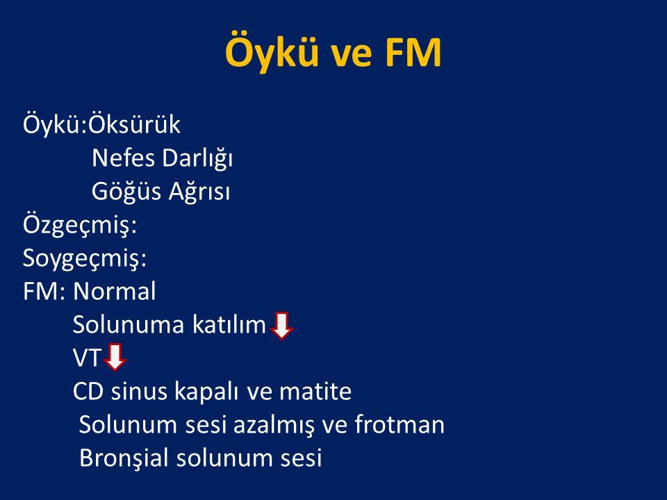 Öykü ve FM Öykü:Öksürük Nefes Darlığı Göğüs Ağrısı Özgeçmiş: Soygeçmiş: FM: Normal Solunuma katılım VT CD sinus kapalı ve matite Solunum sesi azalmış