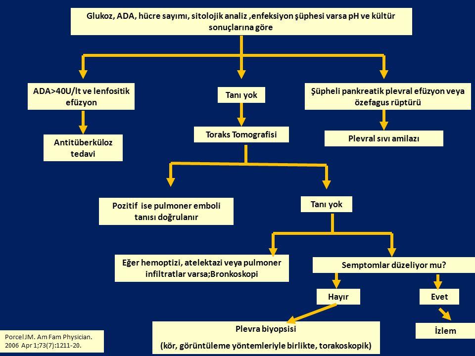 Glukoz, ADA, hücre sayımı, sitolojik analiz,enfeksiyon şüphesi varsa pH ve kültür sonuçlarına göre ADA>40U/lt ve lenfositik efüzyon Tanı yok Şüpheli p