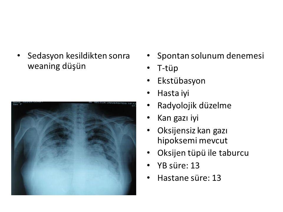 Sedasyon kesildikten sonra weaning düşün Spontan solunum denemesi T-tüp Ekstübasyon Hasta iyi Radyolojik düzelme Kan gazı iyi Oksijensiz kan gazı hipo