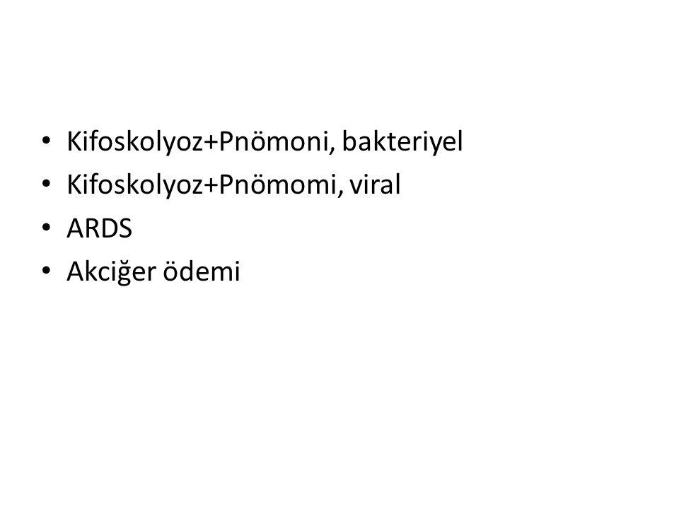 Kifoskolyoz+Pnömoni, bakteriyel Kifoskolyoz+Pnömomi, viral ARDS Akciğer ödemi
