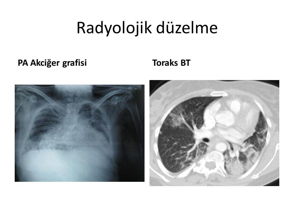Radyolojik düzelme PA Akciğer grafisiToraks BT