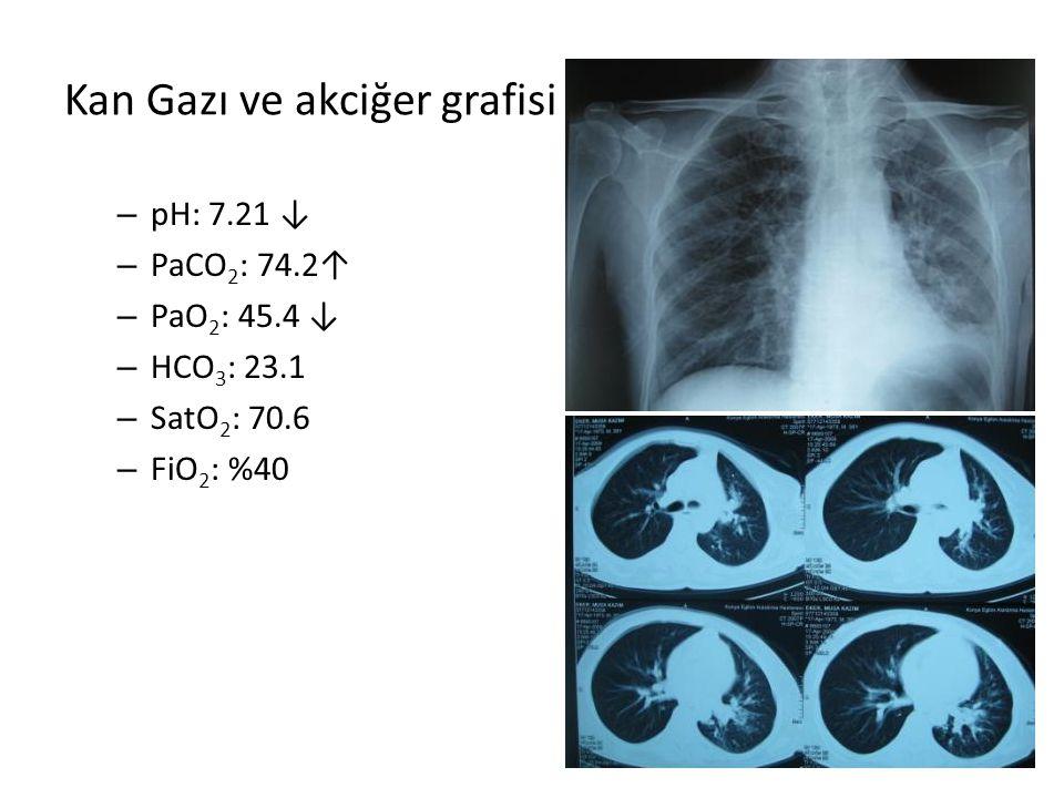 Kan Gazı ve akciğer grafisi – pH: 7.21 ↓ – PaCO 2 : 74.2↑ – PaO 2 : 45.4 ↓ – HCO 3 : 23.1 – SatO 2 : 70.6 – FiO 2 : %40